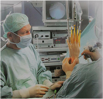 Arthroskopie des Handgelenks