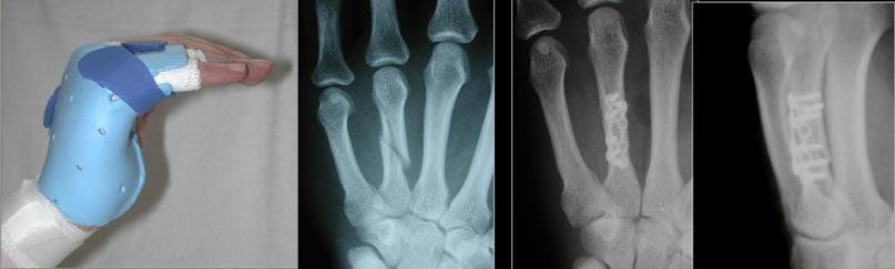 Fingerfrakturen